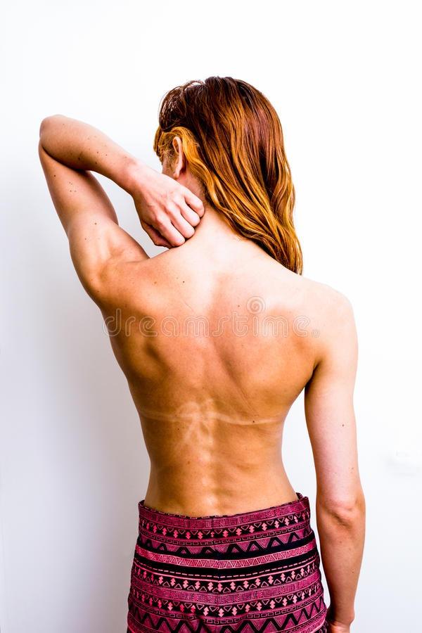 Почему потеет спина что делать