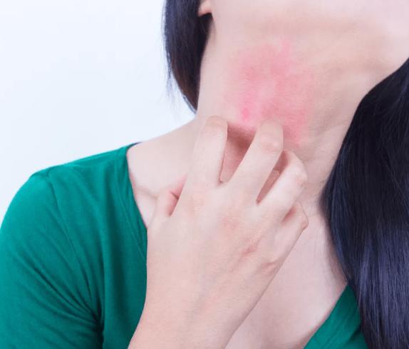 Красная шея у женщин