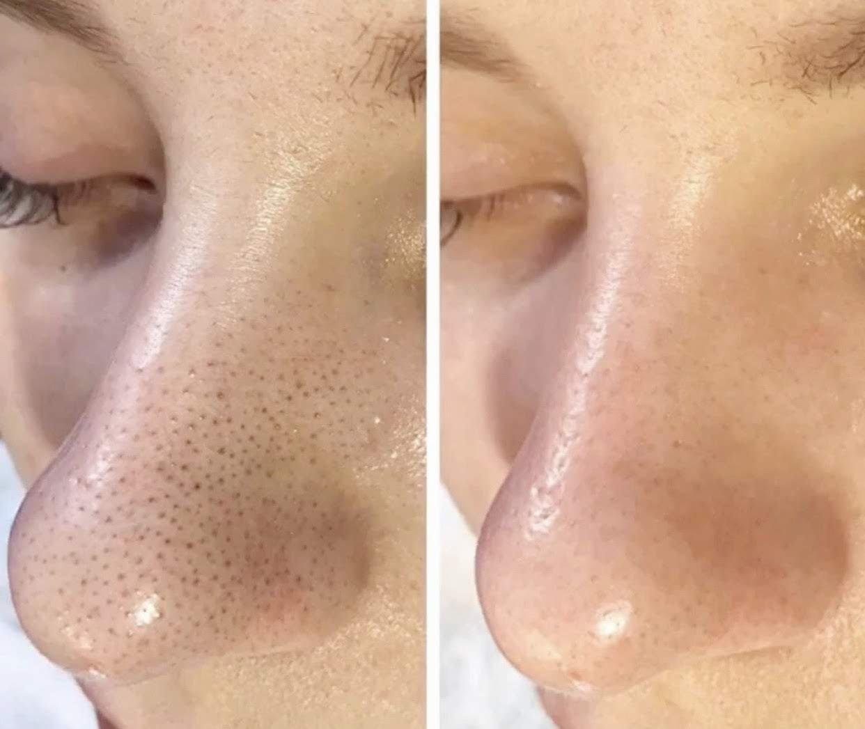 Очистить закупоренные поры на лице